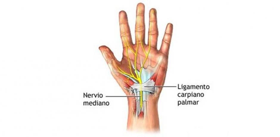 Síndrome del Tunel Carpiano. Tratamiento con acupuntura